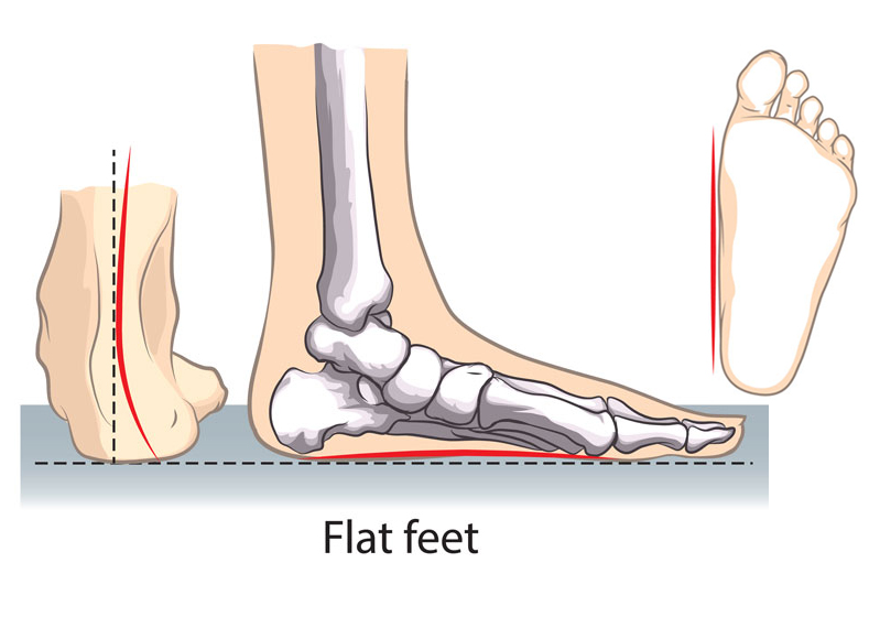 Flat Foot and Posterior Tibial Tendon Tears