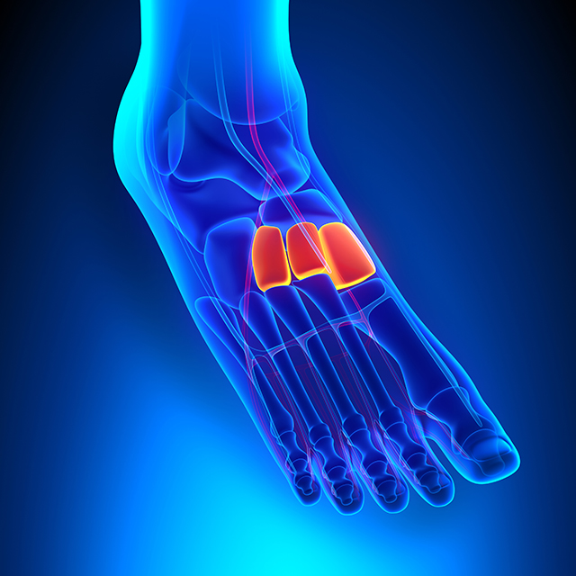 Lisfranc (Midfoot) Fracture-Disclocations