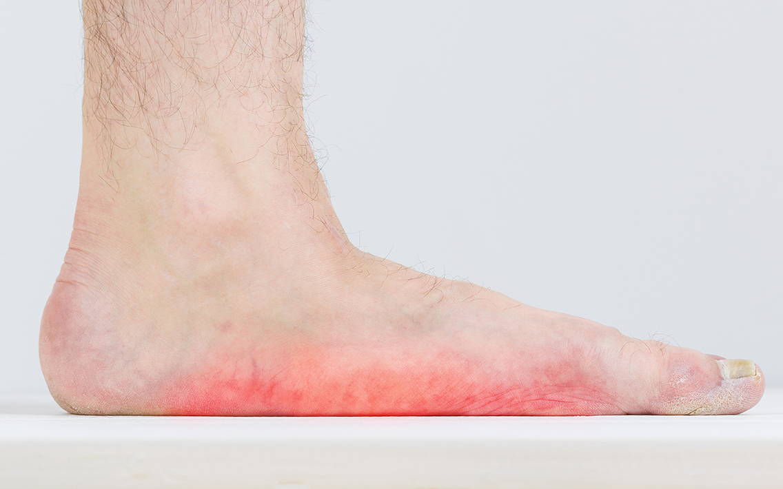 Flat Foot and Posterior Tibial Tendon Dysfunction